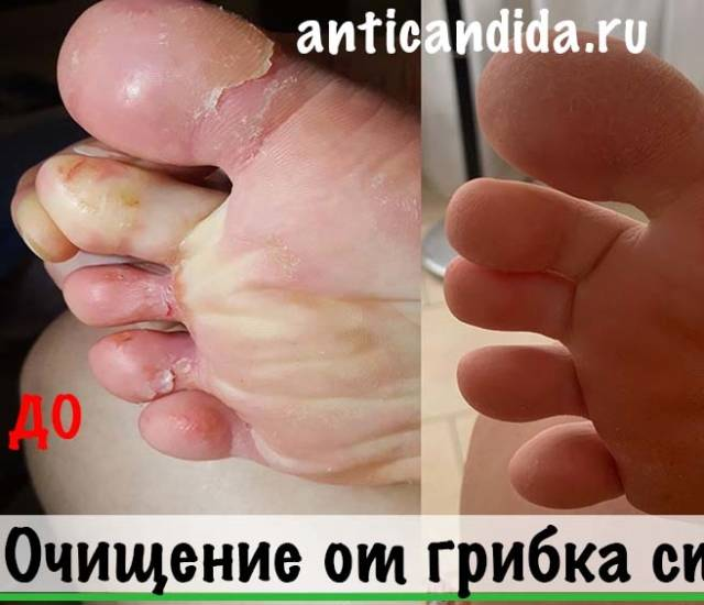 Лечение грибка стопы. Рабочий метод. Фото До и После