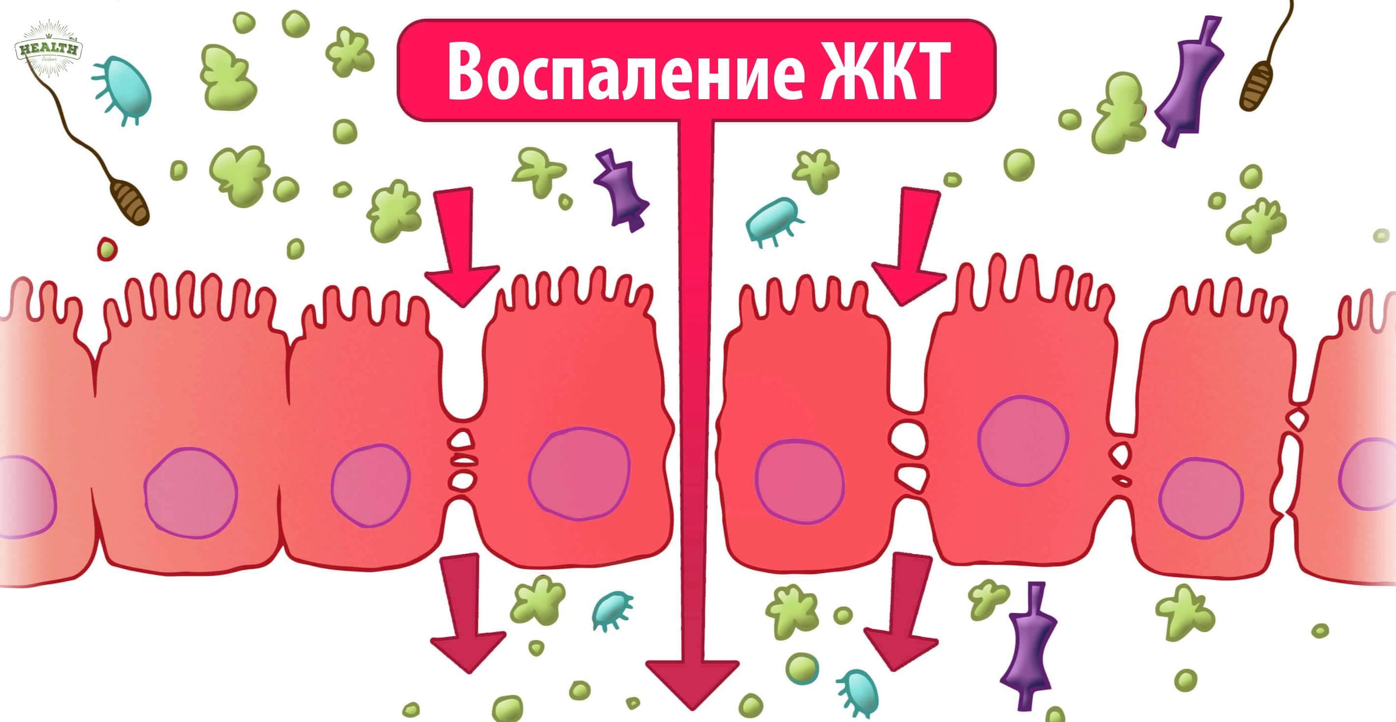 Протекающий кишечник