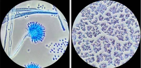 Что такое грибок кандида? Всё о грибке и кандидозе