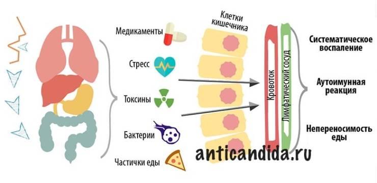 «GAPS» диета — Лечение болезней кишечника