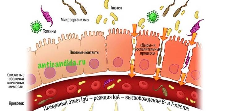 Что такое синдром GAPS и «дырявый кишечник»?